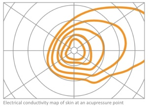 Akupunktiopiste